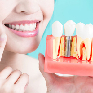 Are You The Right Candidate For Dental Implants