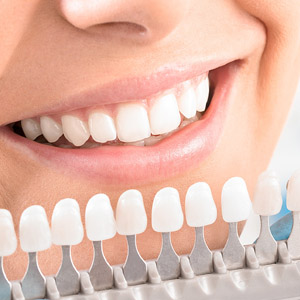 8 Best Reasons To Get Teeth Whitening