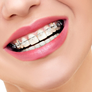 How to Choose an Orthodontist - Fremont, CA