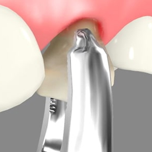 Oral Surgery Fremont California